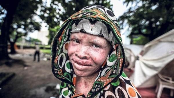 Président Alpha Condé préoccupé par la vulnérabilité des albinos